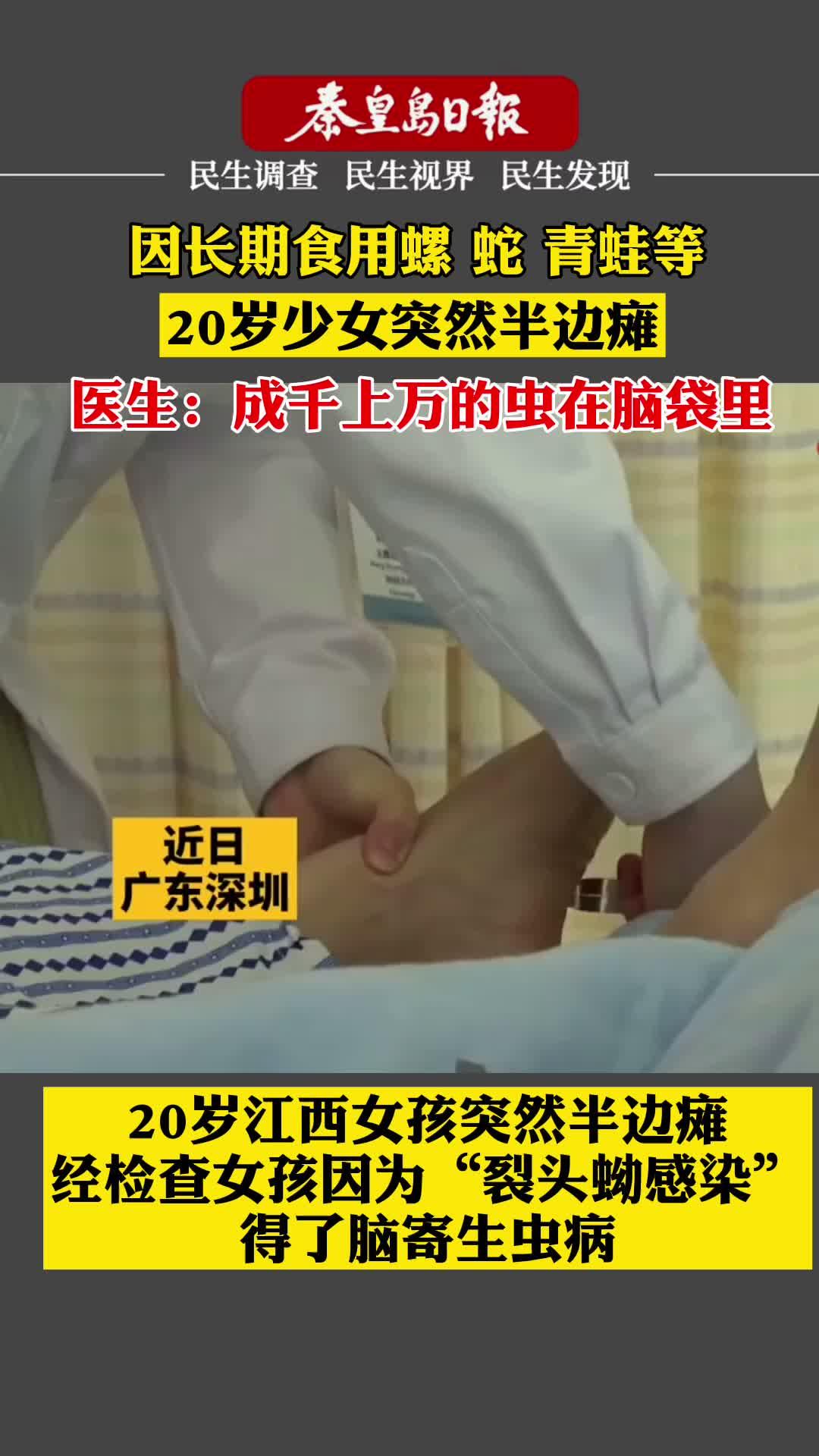 秦皇岛日报数字传播: 因长期食用螺 青蛙 蛇等,20岁少女突然半边瘫成千上万的虫在脑袋里